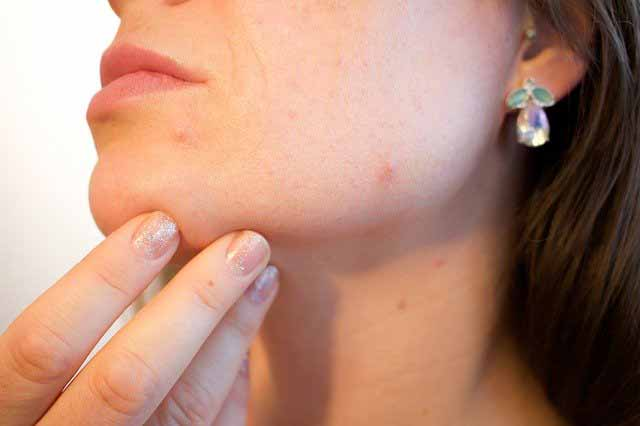 Acne on a woman's skin
